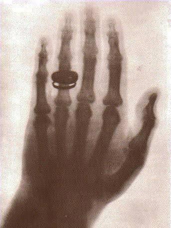 خاتم السيدة رونتجن
