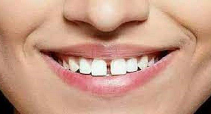 فلج الأسنان